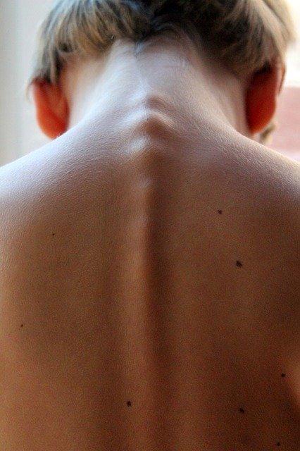 colonne vertebrale spinal
